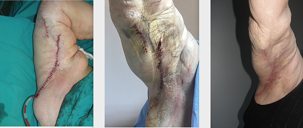 Intra-operative,-early-and-late-post-operative-images-of-the-patient-operated-for-brachial-dermo-lipectomy;-four-sessions-of-ciNPWT-were-used-right-after-the-operation.