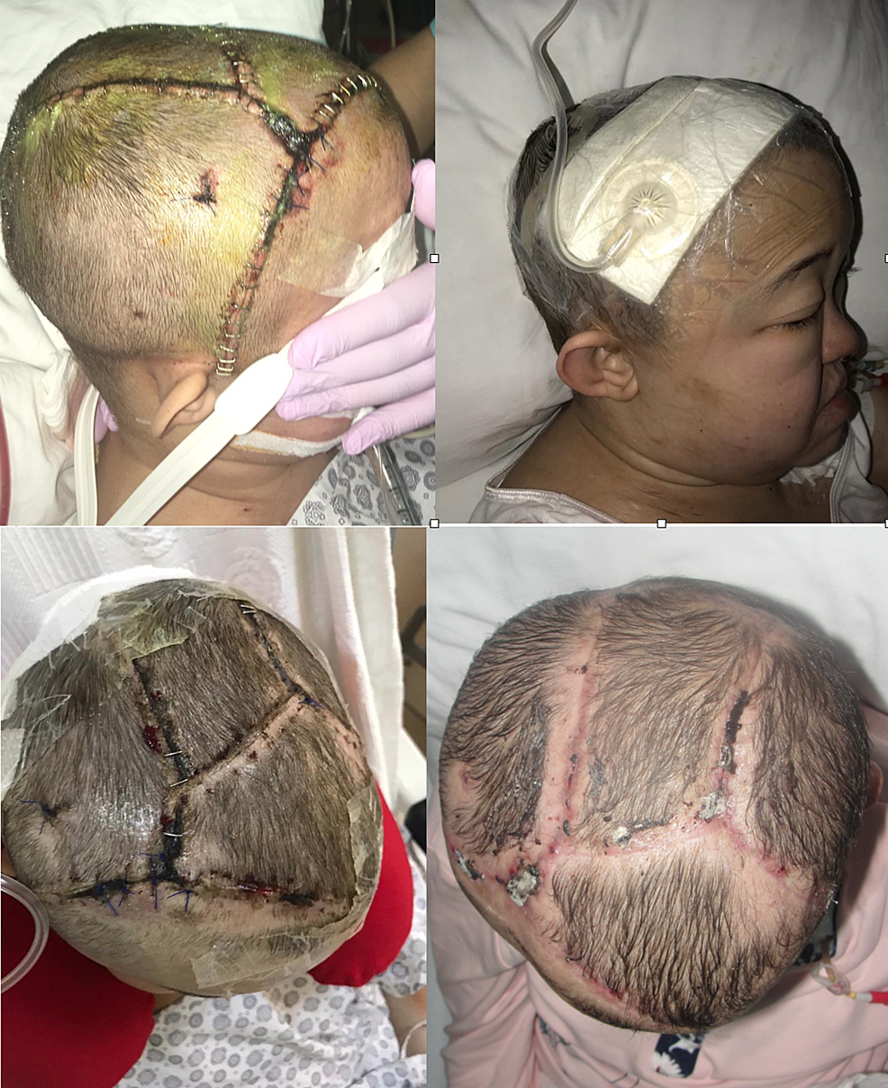 (Top-left)-Early-post-operative-image-and-(top-right)-application-of-ciNPWT-to-the-scalp.-The-patient-had-decompression-surgery-four-times;-formation-of-CSF-fistula-was-prevented-in-spite-of-CSF-accumulation-under-the-scalp-after-drain-removal-(bottom-left).-Post-operative-image-of-the-patient,-in-the-second-month,-after-four-sessions-of-ciNPWT-(bottom-right).