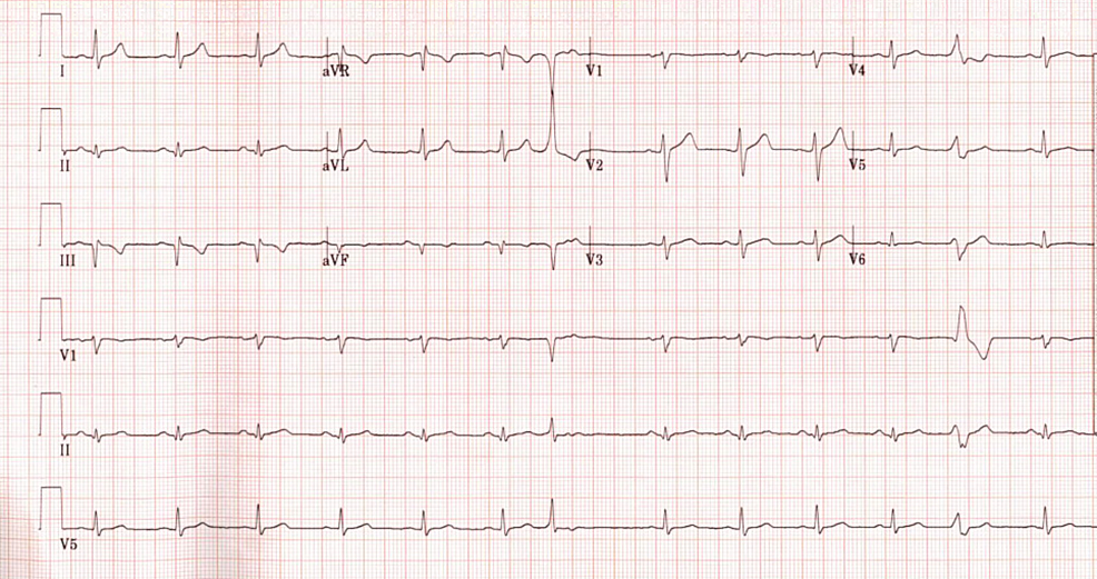 Electrocardiogram-showing-Q-waves-in-leads-III-and-aVF,-T-wave-inversion-in-lead-III,-and-premature-ventricular-contractions.