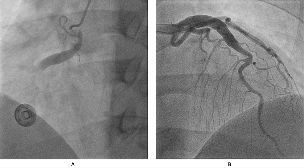 (A)-Ectatic-right-coronary-artery-with-obstructive-intramural-thrombus.-(B)-Ectatic-left-anterior-descending-artery.