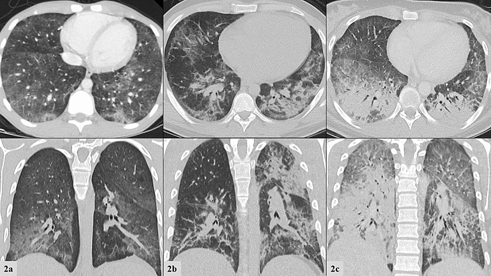 "a-c:-Initial-computed-tomography-of-the-chest.-Top-row-frames-depict-transverse-views-and-bottom-row-frames-depict-coronal-views.-From-left-to-right:-Patient-1,-Patient-2,-Patient-3.--2a-""Ill-defined-fluffy-confluent-centrilobular-nodules-seen-bilaterally,-more-confluent-and-dense-the-lung-bases-with-subpleural-sparing.""--2b-""Bilateral-patchy-ground-glass-and-consolidative-opacities.""--2c-""Dense-bilateral-lower-lobe-consolidations.-Bilateral-upper-lobe-and-right-middle-lobe-ground-glass-consolidations-with-interstitial-thickening."""