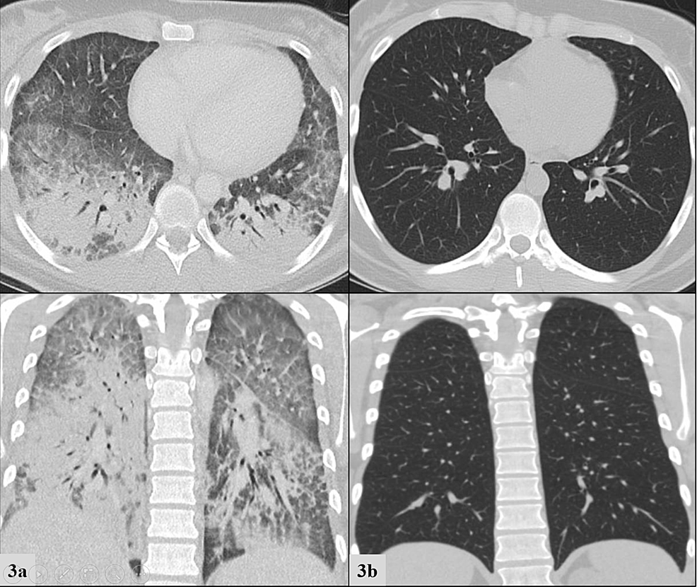 Chest-computed-tomography-for-Patient-3-at-presentation-(3a,-left-column)-compared-to-1-month-after-discharge-(3b-right-column).-Top-row-frames-depict-transverse-views-and-bottom-row-frames-depict-coronal-views.