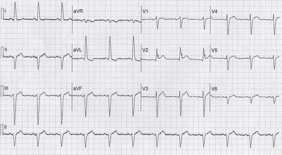 "ECG-on-admission-showing-'Rsr'-pattern-in-V2-(""giant-R-wave"")"