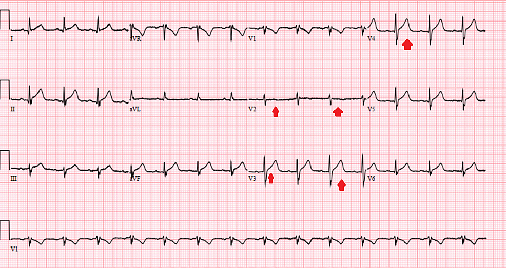 Electrocardiogram-showing-resolution-of-the-ST-changes-with-the-correction-of-the-serum-calcium-level