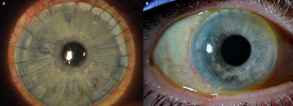 Large-diameter-penetrating-keratoplasty-at-12-months-postoperative-(A)-and-at-10-years-(B)-for-complications-of-peripheral-ulcerative-keratitis.