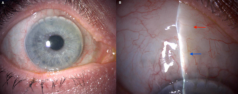 Appearance-of-the-right-eye-six-months-postoperative-XEN45-implantation.