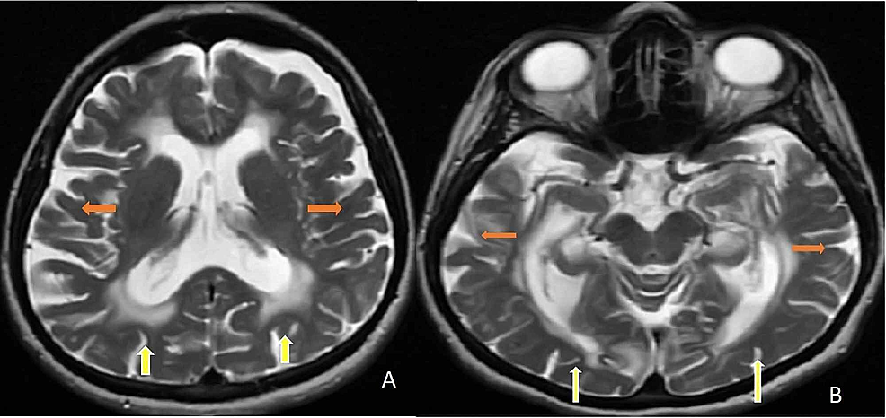 A-B.-Axial-T2-brain-MRIs-demonstrate-bilateral-periventricular,-subcortical-frontal,-and-parieto-occipital-white-matter-involvement-(yellow-arrows).-Axial-T2-brain-MRIs-show-atrophy-of-the-cerebrum-(orange-arrows)-with-hyperintensities-in-the-bilateral-periventricular-and-subcortical-white-matter-(yellow-arrows).
