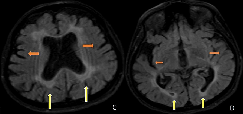 C-D.-Axial-FLAIR-brain-MRIs-demonstrate-diffuse-hyperintensities-in-the-periventricular-and-subcortical-white-matter-(yellow-arrows)-with-cerebral-atrophy-(orange-arrows).