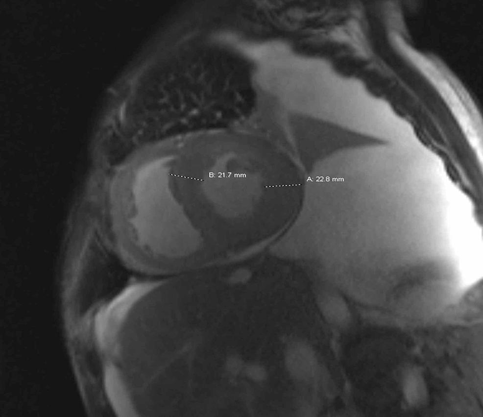 Cardiac-MRI