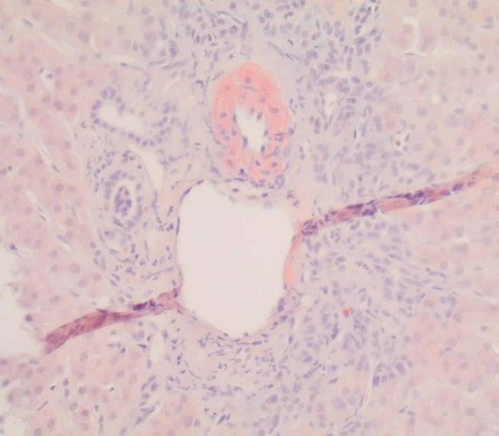 Liver-biopsy