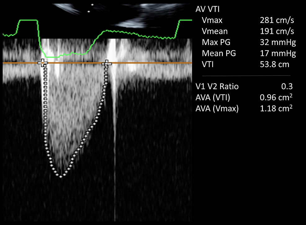 Doppler-echocardiogram-showing-improvement-in-peak-and-mean-gradients-at-32-mm-Hg-and-17-mm-Hg-respectively-with-treatment-of-anemia