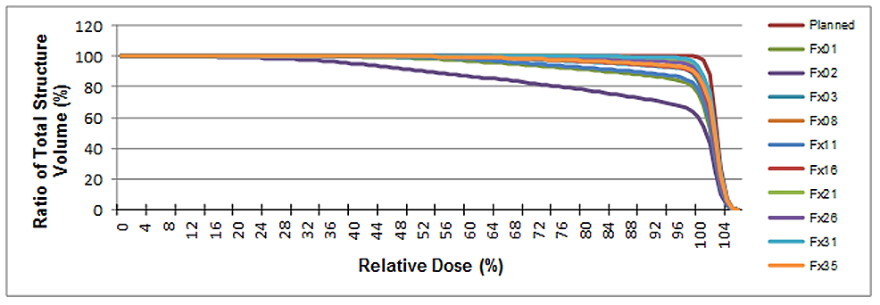-An-illustrative-dose-volume-histogram-generated-for-patient-P12.-The-y-axis-represents-the-amount-of-bladder-that-received-the-indicated-amount-of-radiation.-Radiation-dose-is-given-as-a-percentage-of-the-prescription-dose.-Note-fraction-2-in-which-a-large-volume-of-bladder-was-missed-due-to-shifts-in-bladder-volume/position-(see-Figure-1-for-an-illustration-of-the-bladder-shift)-