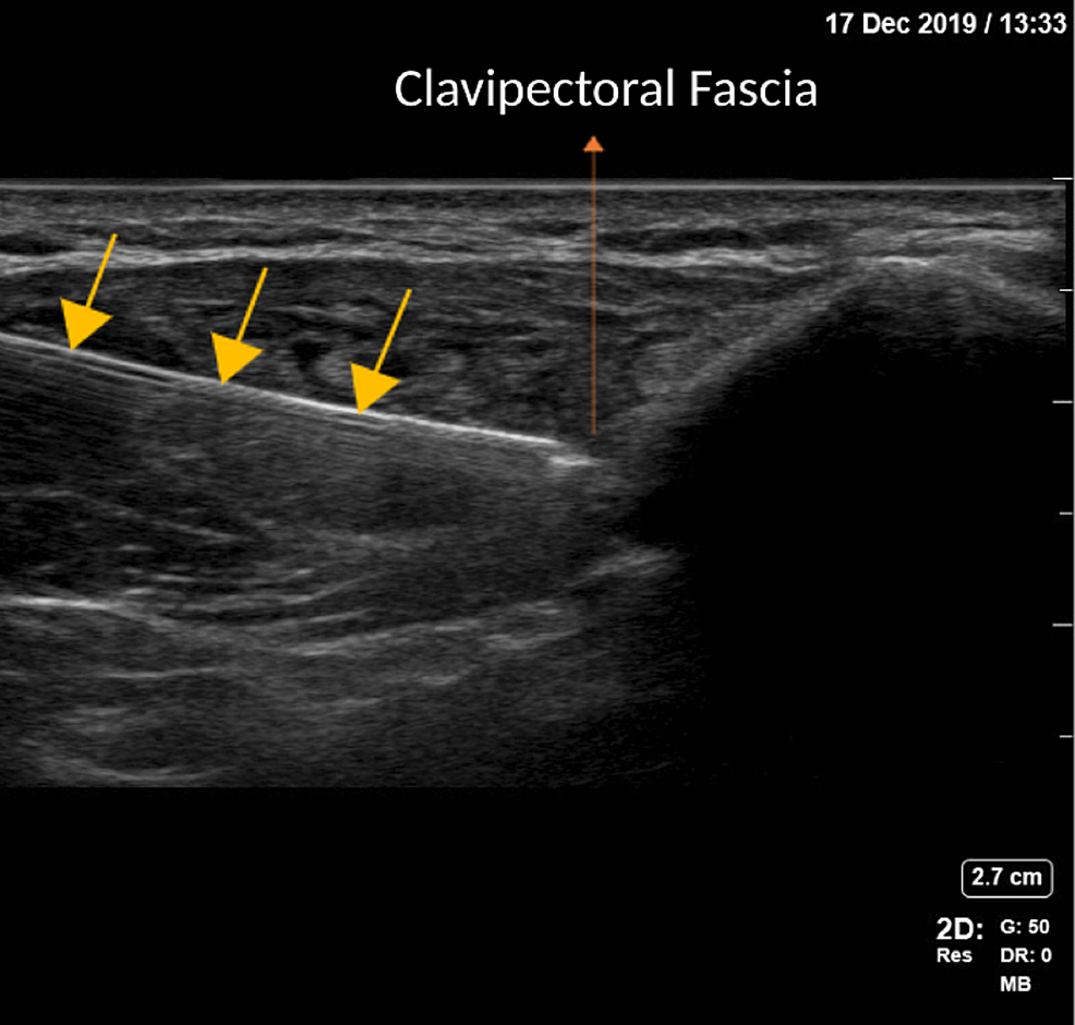 Ultrasound-image-of-in-plane-needle-technique-for-CPB