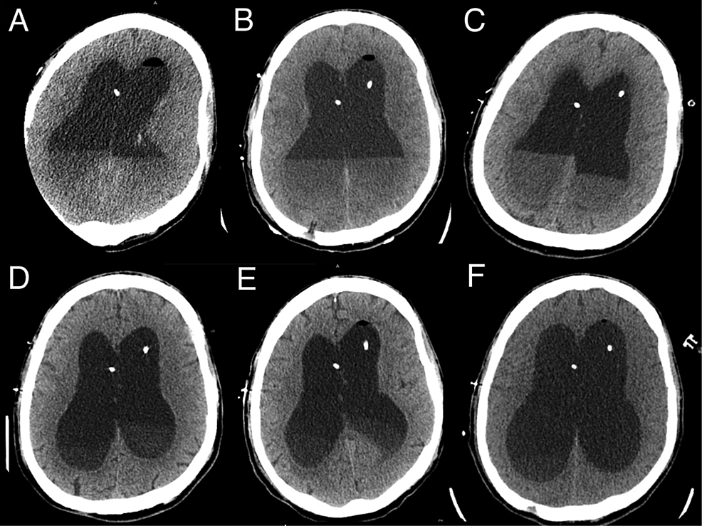 Axial-non-contrast-computed-tomography-(CT)-cuts-on-treatment-day-1,-2,-3,-7,-10,-and-14-(A-F,-respectively)