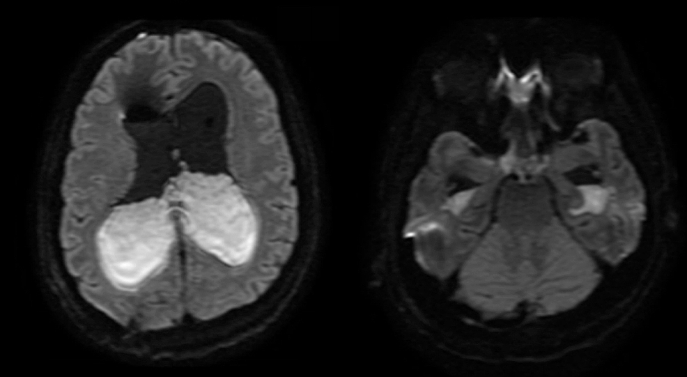 Magnetic-resonance-imaging-(MRI)-obtained-(axial-diffusion-weighted-imaging)-at-Day-4-of-infection-was-notable-for-extensive-infection-with-ventriculitis-and-basilar-meningitis-with-diffuse-subarachnoid-pus-throughout-the-basilar-cisterns