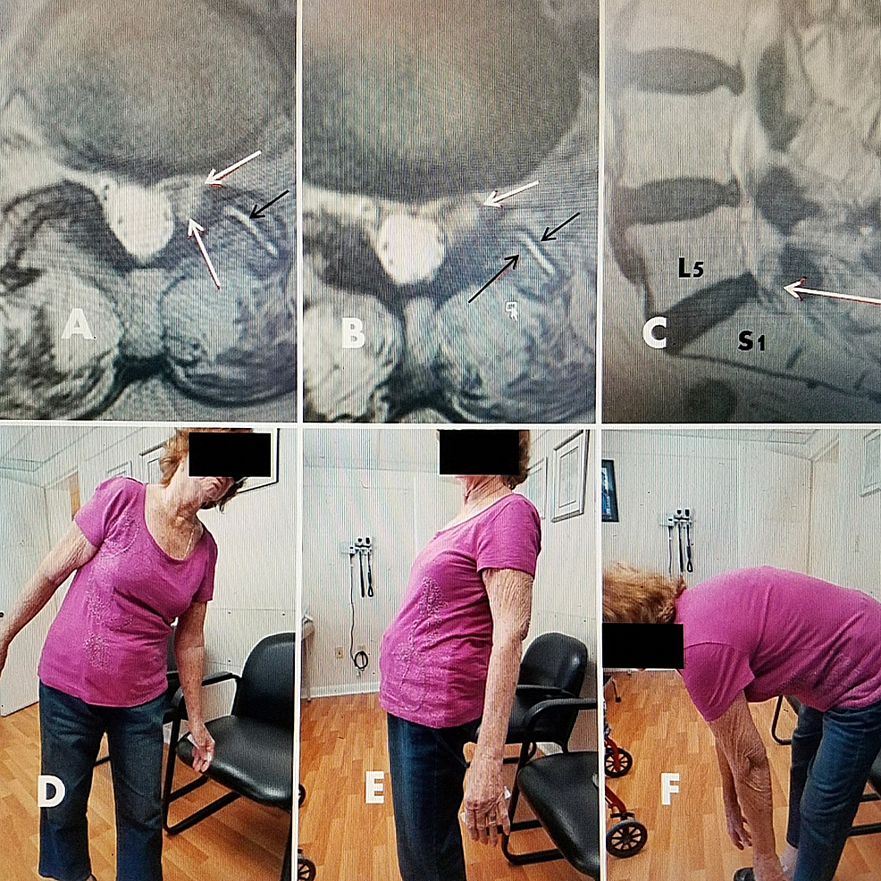 79-year-old-female-with-L5-S1-foraminal-cyst-with-radiculopathy