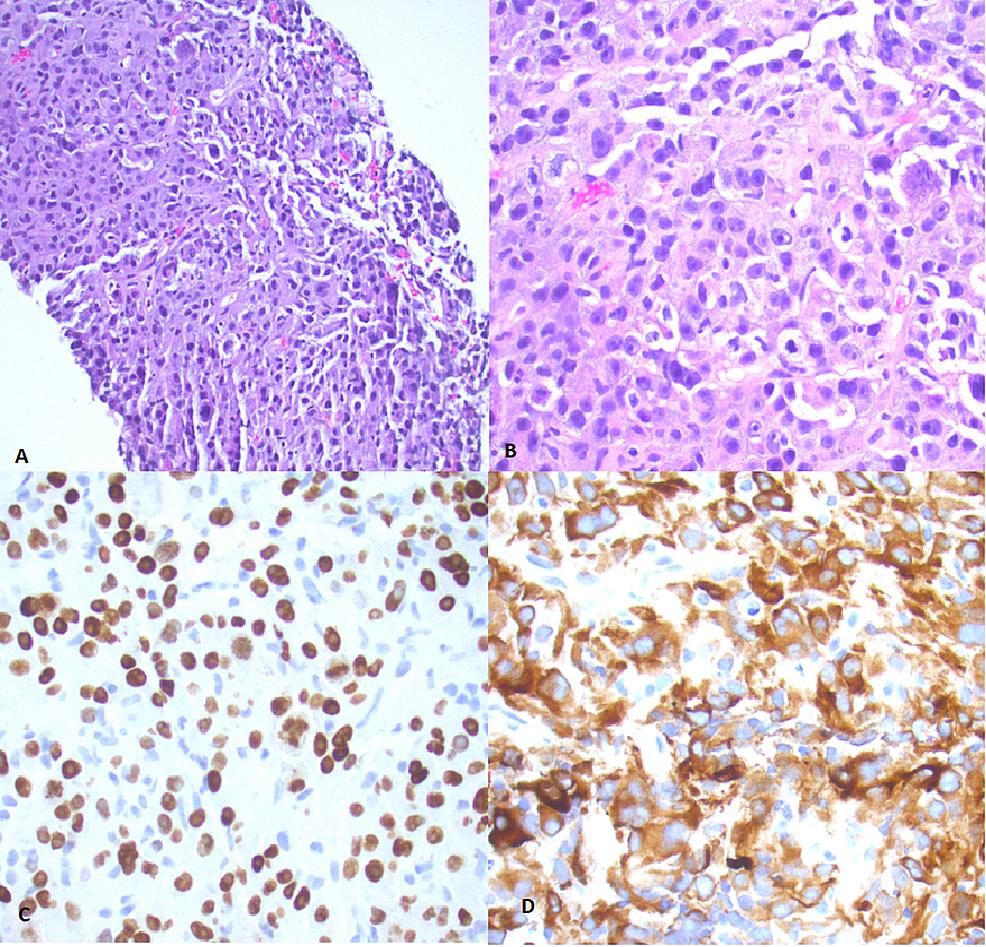 Mediastinal-biopsy-tissue