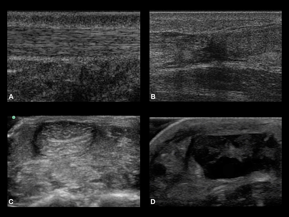 Panels-A-and-C-represent-the-normal-sonographic-Achilles-tendon-appearance-in-the-sagittal-and-transverse-planes,-respectively.-Panels-B-and-D-represent-ruptured-Achilles-tendons-seen-in-the-sagittal-and-transverse-planes,-respectively.-All-images-obtained-were-from-actual-cadavers-used.