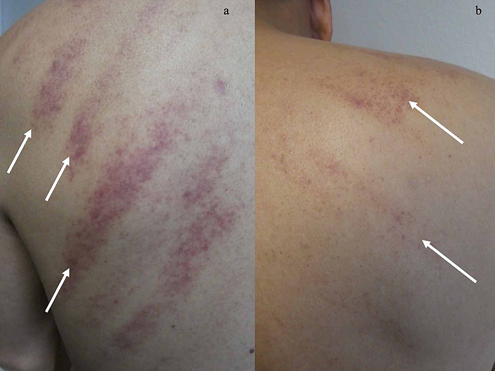 Linear-purpura-resulting-from-coining-on-the-upper-back.