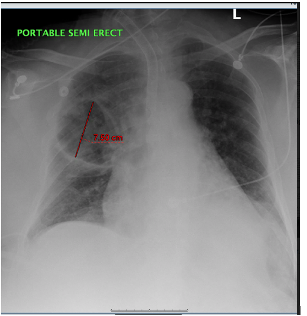 Chest-X-ray:-There-is-patchy-infiltrate-versus-atelectasis-at-the-left-lung-base.-There-are-patchy-infiltrates-in-the-right-upper-lobe.-There-is-also-new-thick-walled-cystic-airspace-in-the-right-upper-lobe-since-the-previous-study.