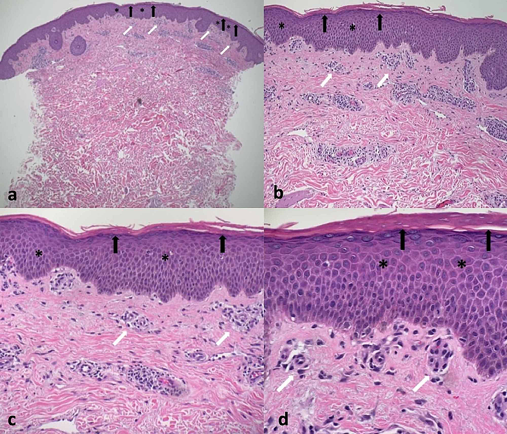 Microscopic-presentation-of-tinea-corporis-mimicking-a-gyrate-erythema-on-hematoxylin-and-eosin-stained-sections
