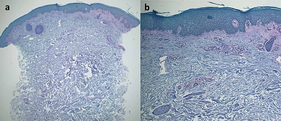 Tinea-corporis-masquerading-as-gyrate-erythema:-microscopic-examination-of-periodic-acid-Schiff-stained-sections