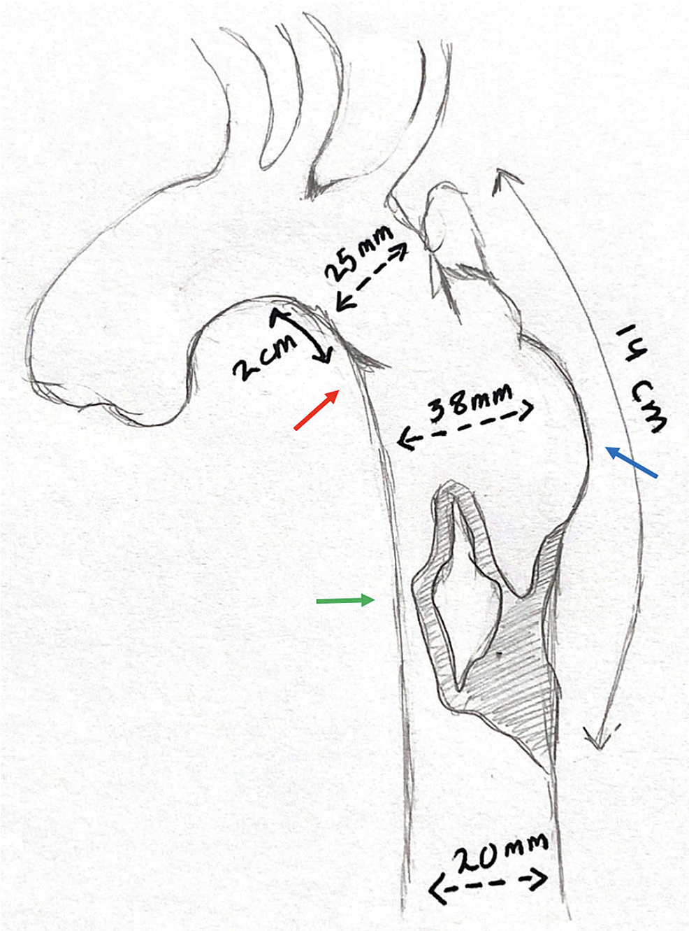 A-sketch-representing-the-CT-angiography-findings