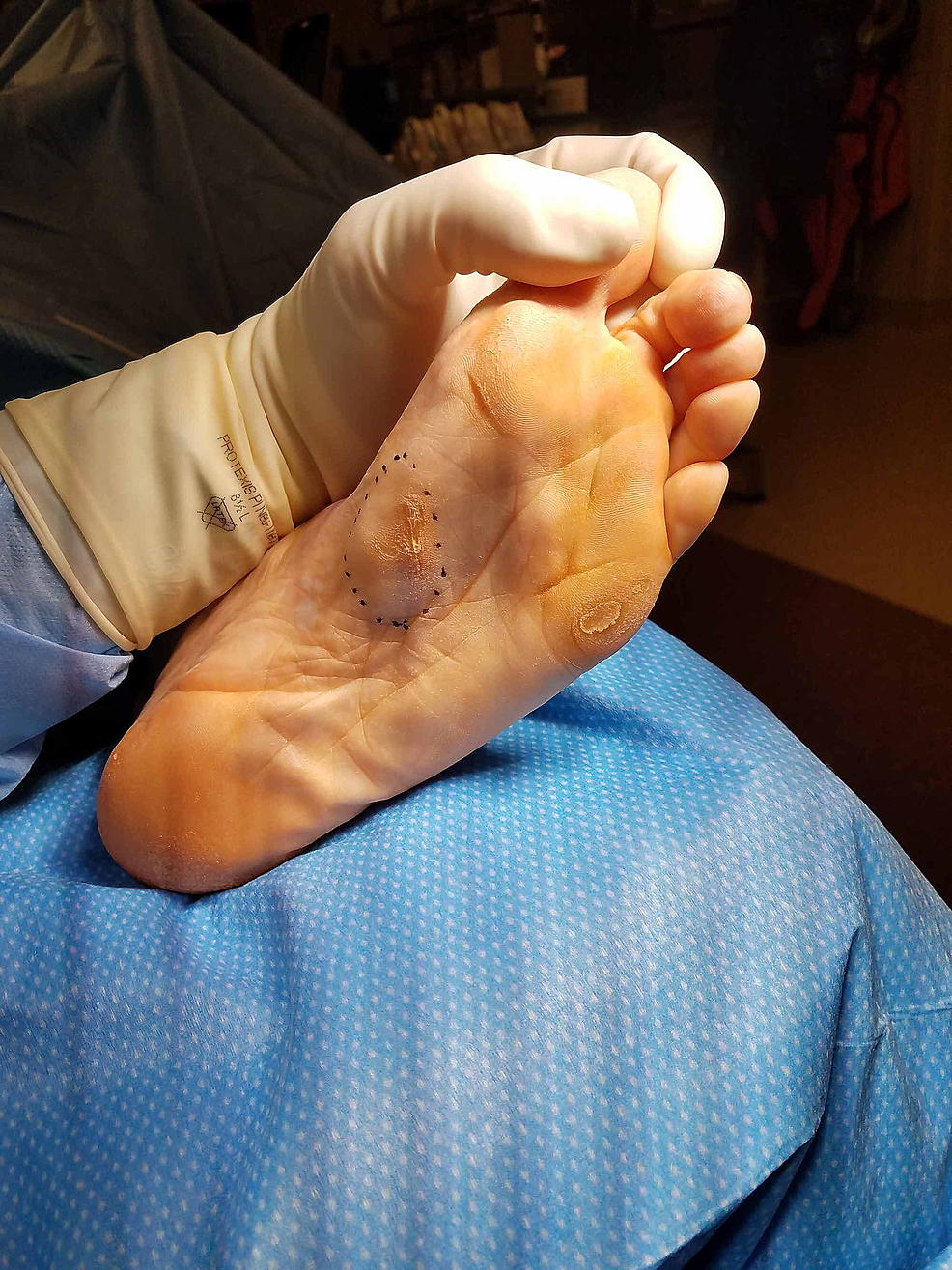 Case-2-pre-operative-photograph-demonstrating-the-recurrent-plantar-fibroma-mass-(note-the-old-mildly-hyperkeratotic-scar).