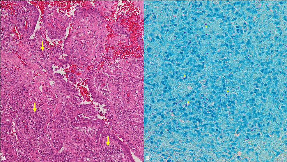 Histologic-analyses-of-tissue-removed-from-repeat-dilation-and-evacuation