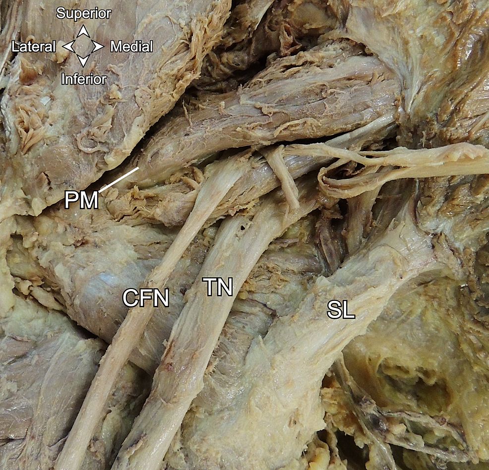 Posterior-view-of-the-divided-left-sciatic-nerve.