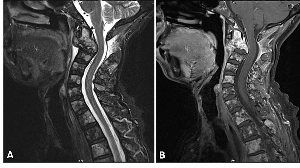 Preoperative-MRI-of-the-cervical-spine-with-contrast