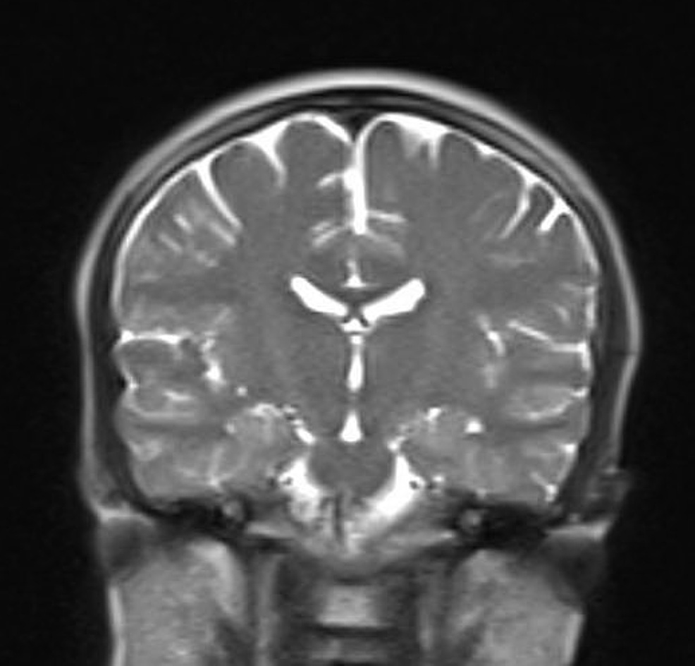 MRI-of-the-brain:-unremarkable-study.