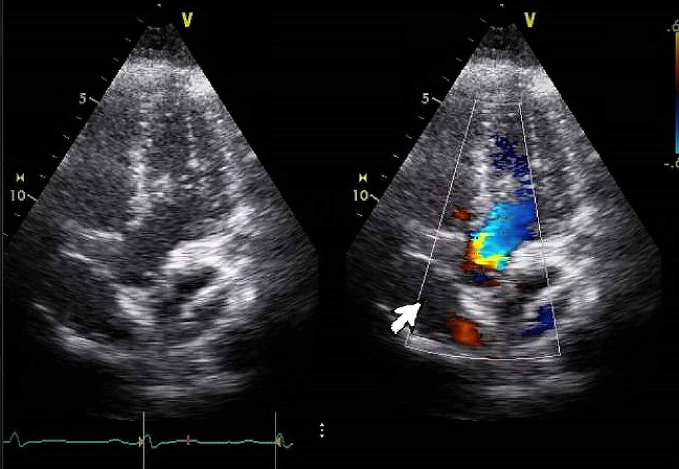Transthoracic-echocardiography-with-colored-Doppler-flow:-white-arrow-shows-patent-foramen-ovale.