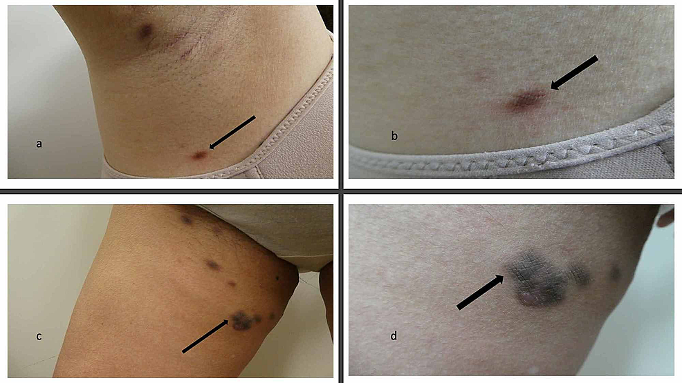 Skin-biopsy-sites-of-cutaneous-Castleman-disease-in-an-Asian-woman-with-idiopathic-multicentric-Castleman-disease-(IMCD)