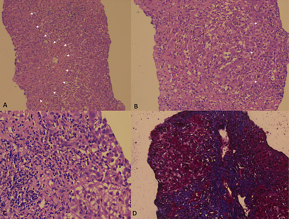 Liver-histopathology