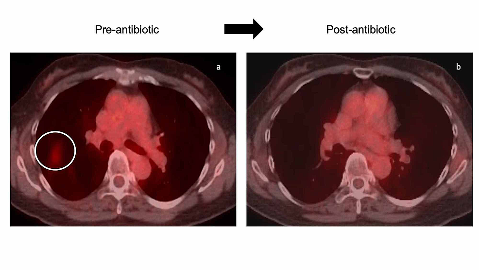 Positron-emission-tomography/computed-tomography-(PET/CT)-scans-demonstrating-evidence-of-active-infection-and-resolution-of-an-afebrile-pneumonia