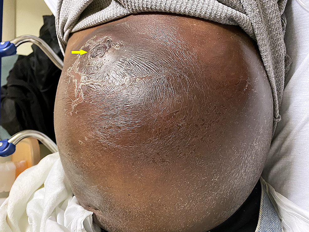 Large,-left-sided-abdominal-wall-swelling,-with-a-recently-healed-wound-(arrow).