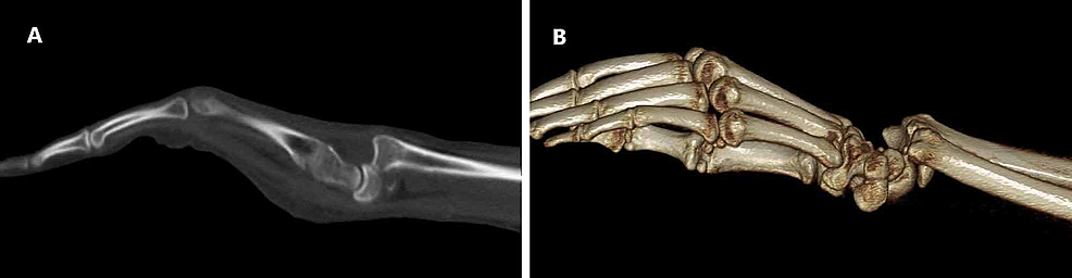 Preoperative-CT-images-of-the-left-wrist.