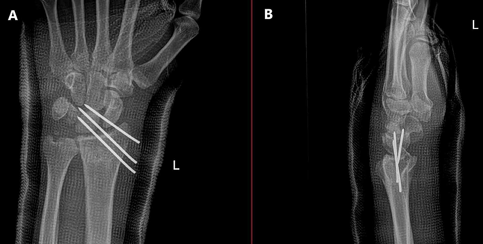 Intraoperative-X-ray-of-the-left-wrist.