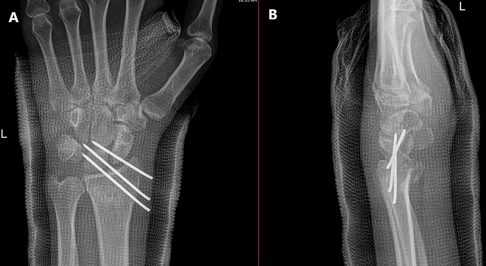 Twelve-days-postoperation,-left-wrist.