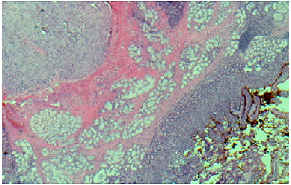 Immunohistochemistry--4-x-cellular-staining-showing-strong-positivity-for-CD117/c-Kit.
