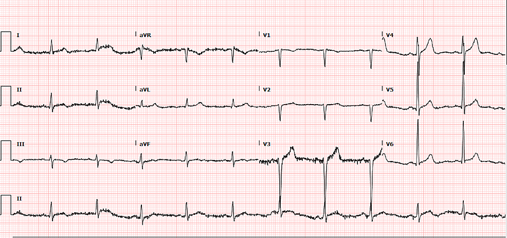 12-lead-electrocardiogram-with-evidence-of-left-ventricular-hypertrophy