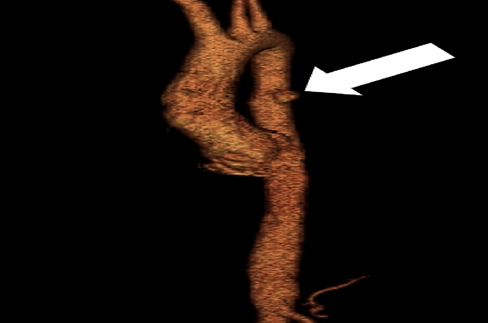 Volume-rendered-computed-tomography-angiogram-(CTA)-demonstrating-the-penetrating-ulcer-(arrow).