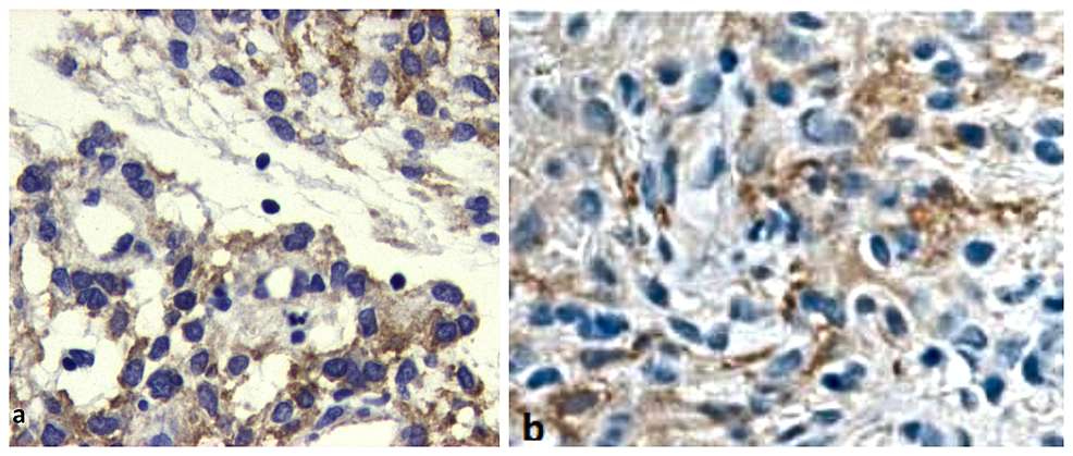EGFR-and-NSE-immunohistochemistry