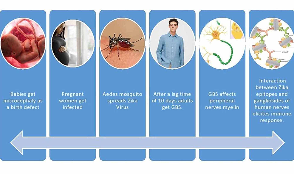This-image-illustrates-the-development-of-GBS-and-microcephaly-from-the-bite-of-the-Aedes-mosquito-and-the-pathway-by-which-it-is-transmitted-to-people.-