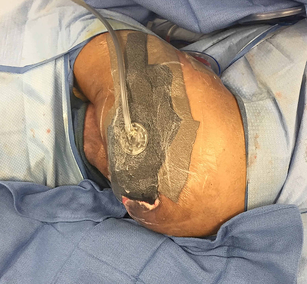 Left-Girdlestone-Site-After-Partial-Closure-with-Hybrid-Open-and-Closed-Negative-Pressure-Therapy-(NPT)
