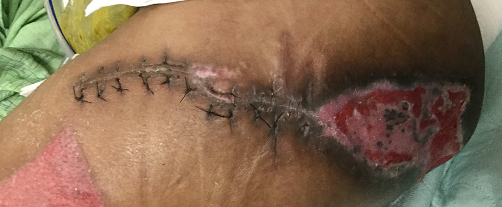 Left-Girdlestone-Site-Four-Weeks-After-Operation