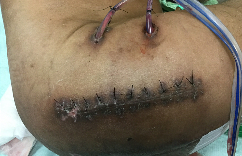 Right-Girdlestone-Site-at-Four-Weeks-After-Operation