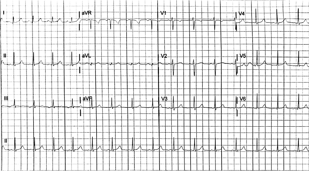 Electrocardiogram-obtained-after-resolution-of-initial-episode-of-supraventricular-tachycardia-two-months-prior,-demonstrating-normal-sinus-rhythm-with-intervals-within-normal-limits
