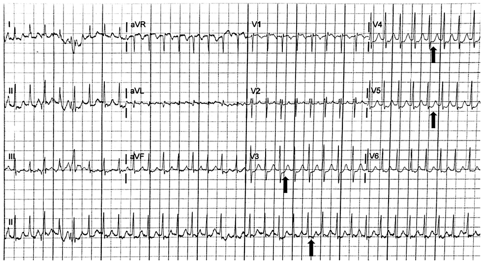 Initial-electrocardiogram-demonstrating-supraventricular-tachycardia-with-diffuse-ST-segment-depressions-(black-arrows)